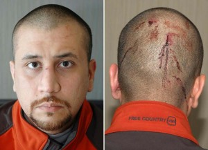 AA - george_zimmerman_injury